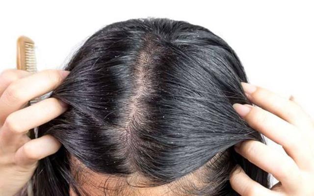 como tirar caspa do cabelo